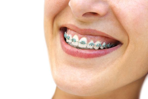 orthodontic-braces
